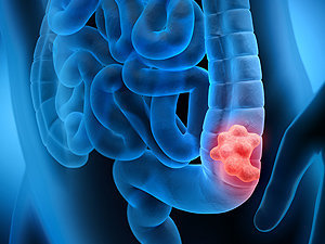 Colorectal Cancer Care at Mount Sinai South Nassau